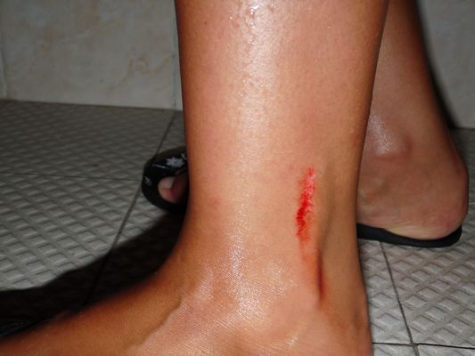 cut on my leg in Playa del Carmen